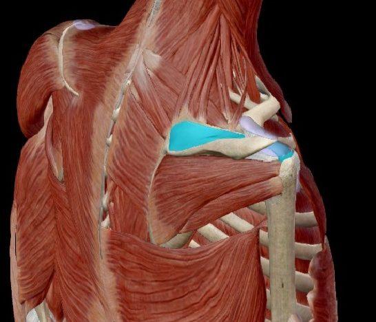 Síndrome subacromial, tendinitis o tendinosis en el hombro.