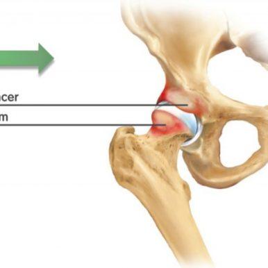 Dolor anterior de cadera: IMPINGEMENT y choque femoroacetabular.